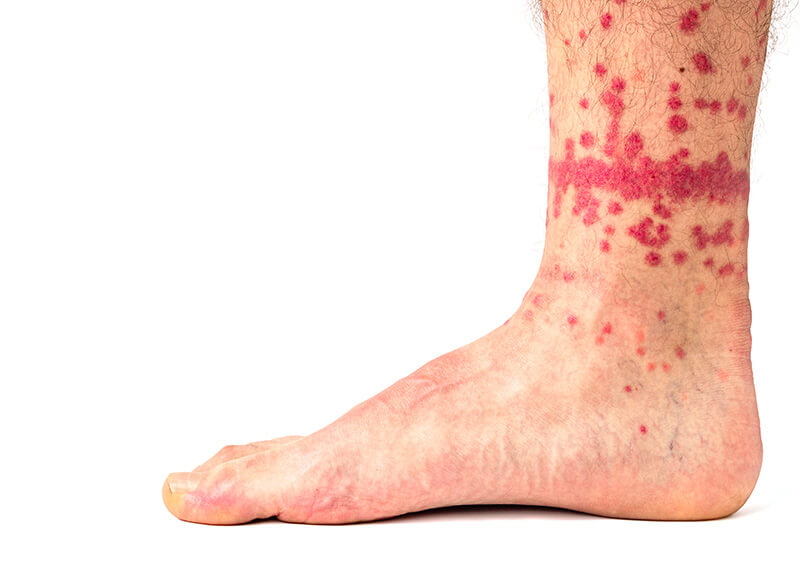 Image of many flea bites on the ankle of a leg.