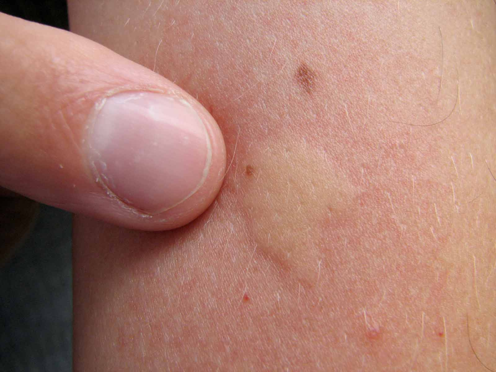 Mosquito saliva causes an immune system reaction, which results in a bump.
